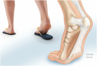 utah foot doctor heel pain podiatrist pediatric podiatrist spanish fork springville payson utah county podiatrist